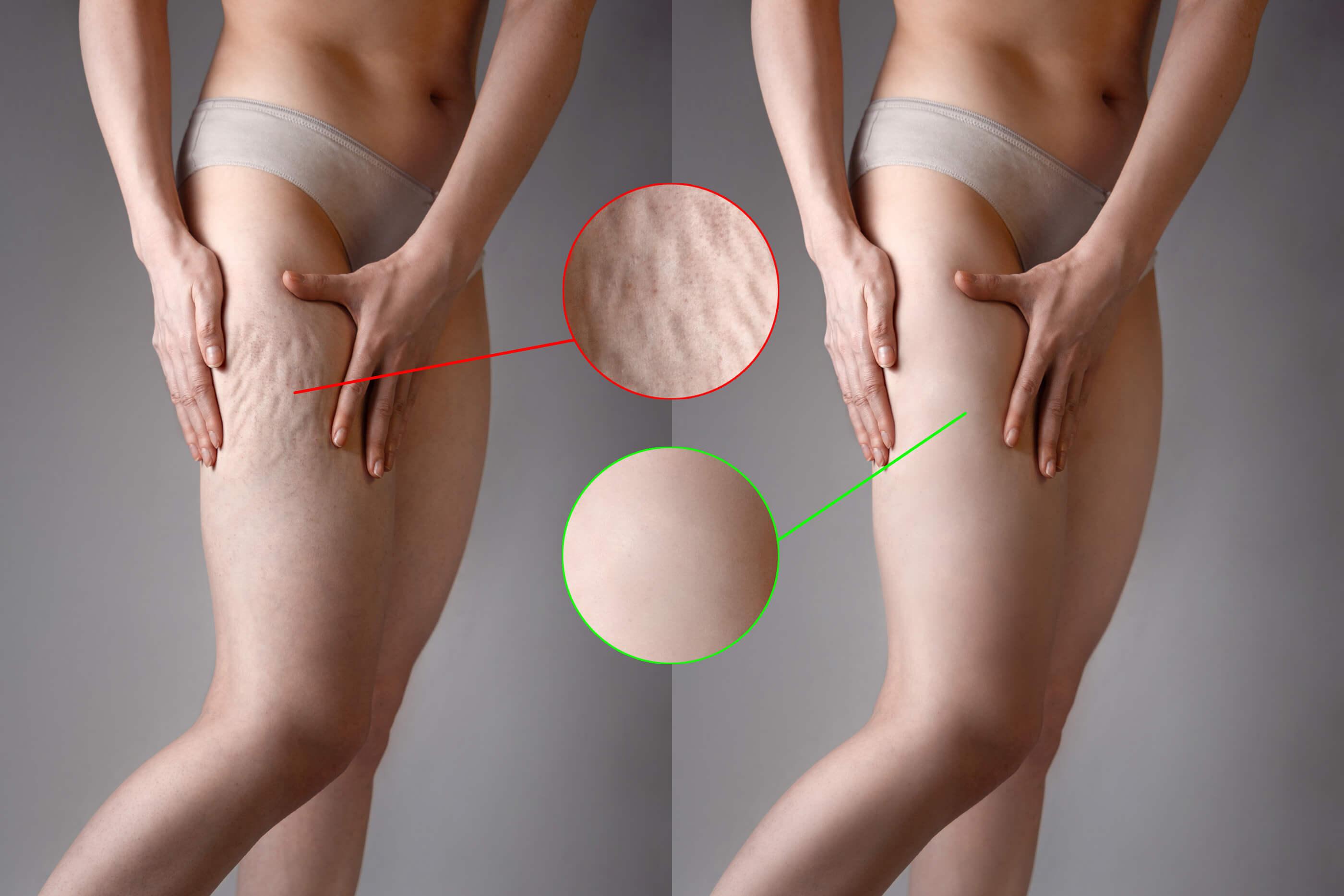 Cellultis bovenbenen